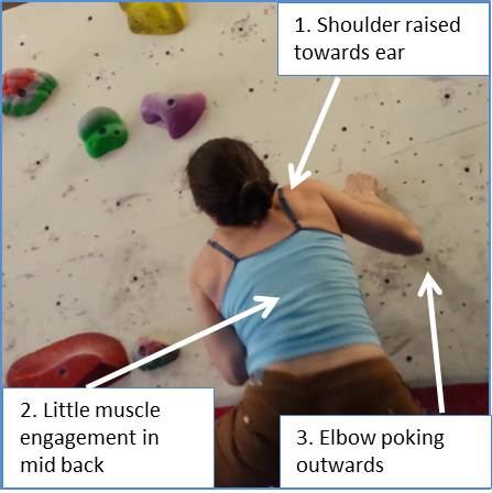 Shoulder Injury due to Incorrect Movement while Climbing