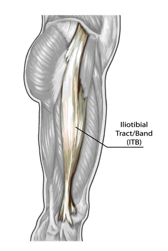 a study of iliotibial band friction syndrom itbfs Biomechanical factors in evaluation and treatment ciated with iliotibial band syndrome (itbs) tor implications compared with a friction syndrome, al-.