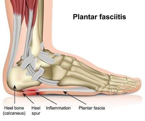 Anatomical picture of the foot showing plantar fascia